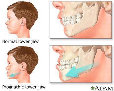 underbite in qatar orthodontic treatment dr Fadi wehda