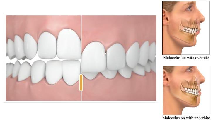 braces clean overbite dentists in qatar