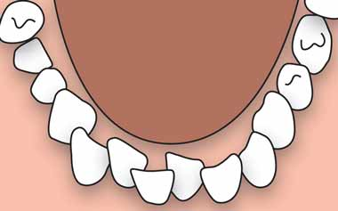 braces clean crowded teeth
