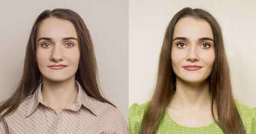 Before and after image of woman having gotten a nose job.