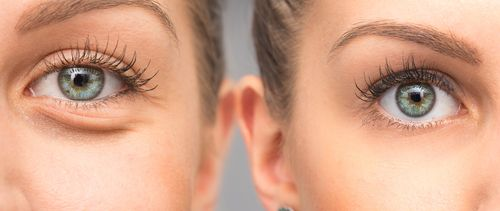 Before and after image showing dermatology treatment for eye puffiness.