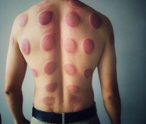 The aftermath of cupping therapy.