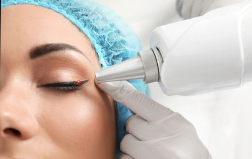Woman getting her eye liner tattoo removed by a dermatologist.
